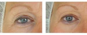 NBE-500---Resultat-efter-tva-behandlingar